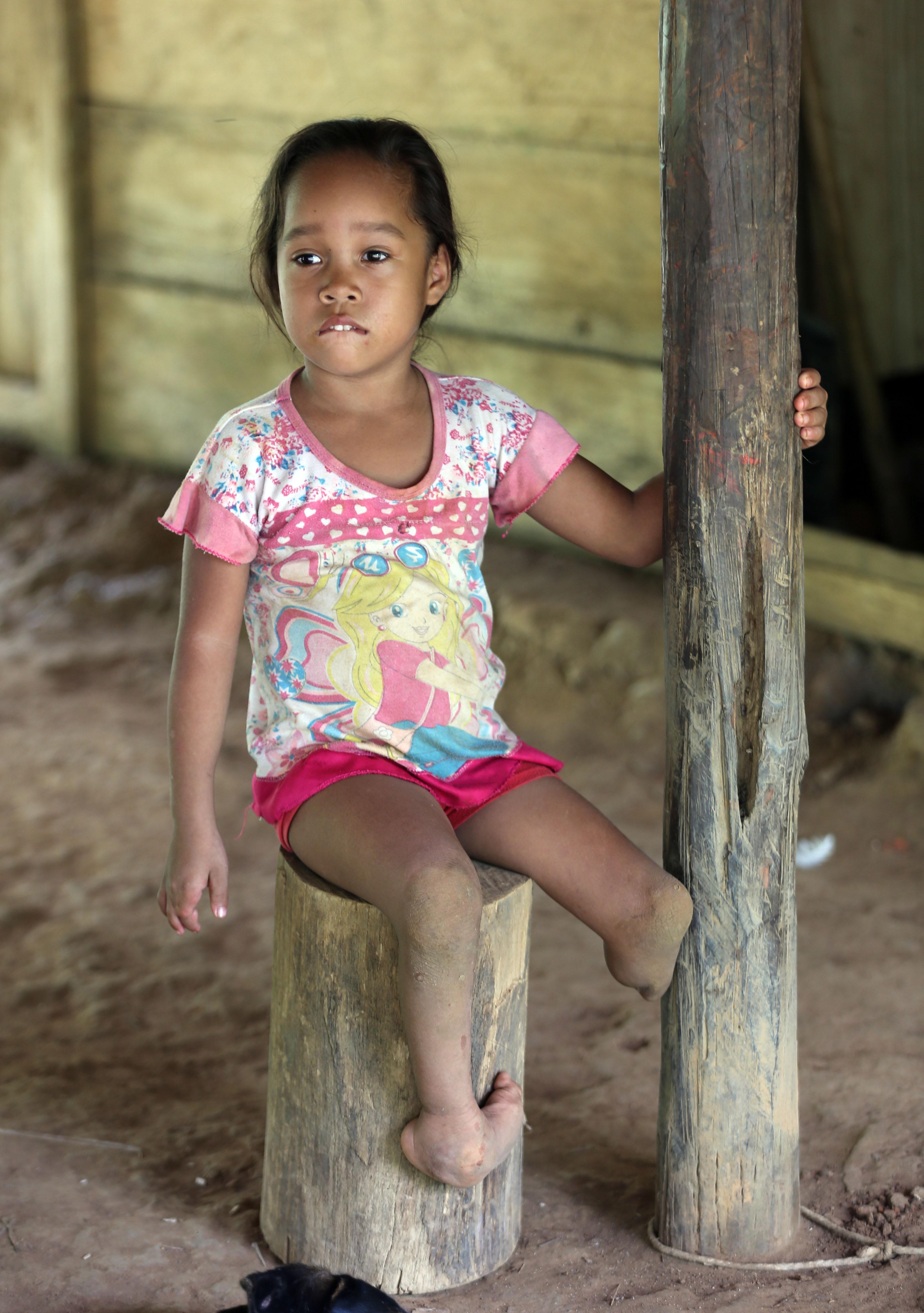 Joani Londono, 5, cuja mãe teve problemas na gravidez depois de comer vegetais de área que recebeu herbicidas. Crédito: Fernando Vergara/AP Photo